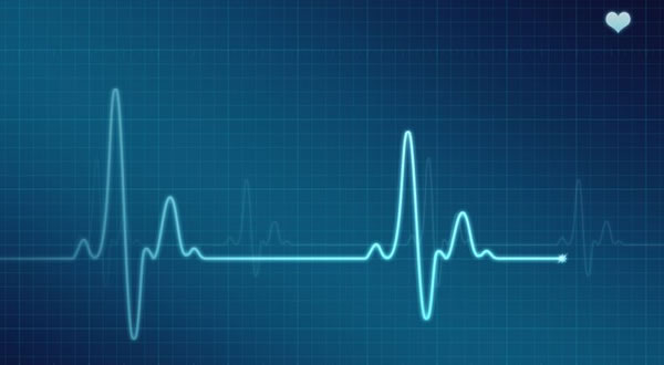 2004-2010 – Eletrocardiograma